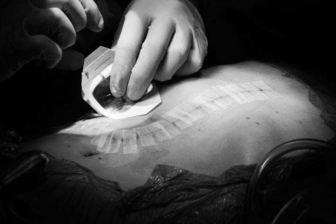 Giving Live, fotografías que capturan la magia de la donación de órganos