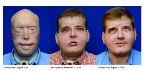 Hombre-con-trasplante-de-rostro-CDN37-300x147