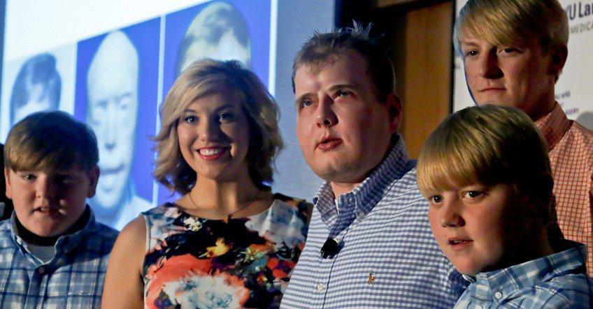 Da la cara primer hombre con trasplante de rostro completo