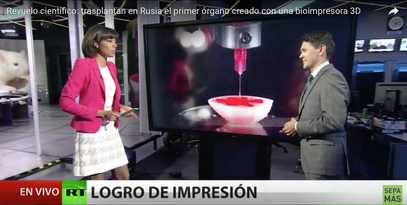 Revuelo científico: Trasplantan con éxito en Rusia el primer órgano creado con una Bioimpresora 3B