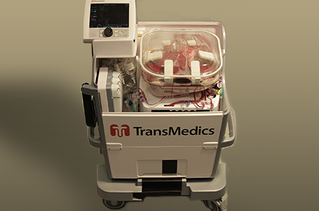 Esta empresa quiere revolucionar los trasplantes