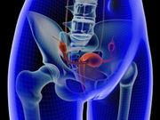 Unos médicos realizan el primer trasplante uterino con donante viva de EE. UU.