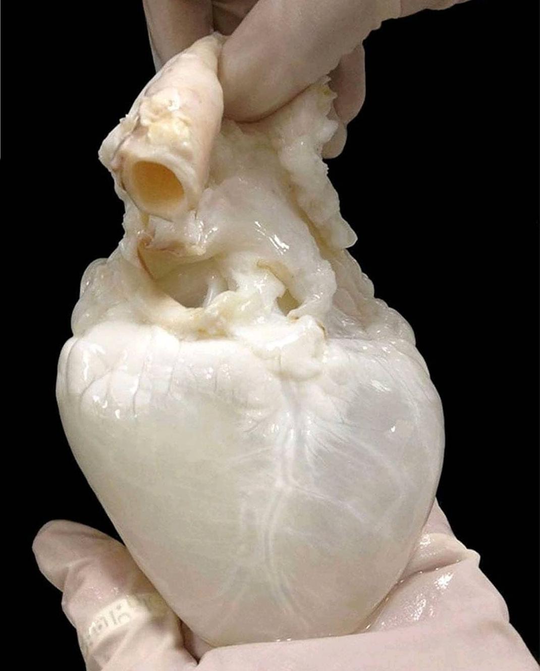 El corazón fantasma